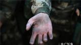 战术训练后,女兵的手掌被磨得乌黑。
